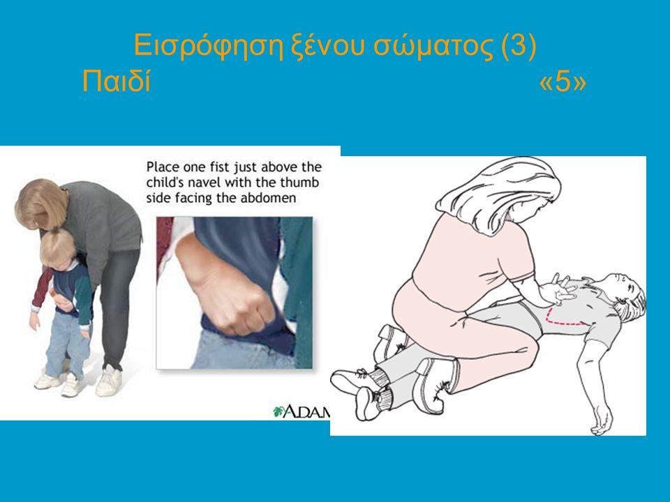 Εισρόφηση ξένου σώματος (3) Παιδί «5»