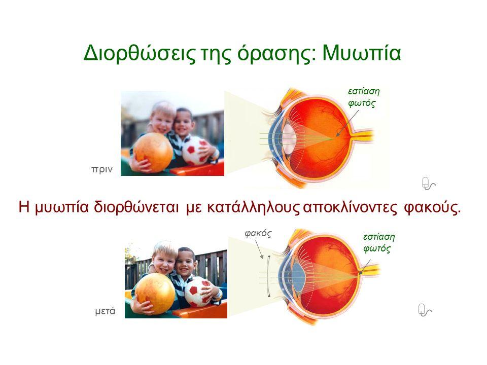 – Πώς διορθώνεται η μυωπία;Η μυωπία διορθώνεται με κατάλληλους αποκλίνοντες φακούς. Ο φακός εστιάζει σωστά μόνο τα πολύ κοντινά αντικείμενα. Διορθώσει
