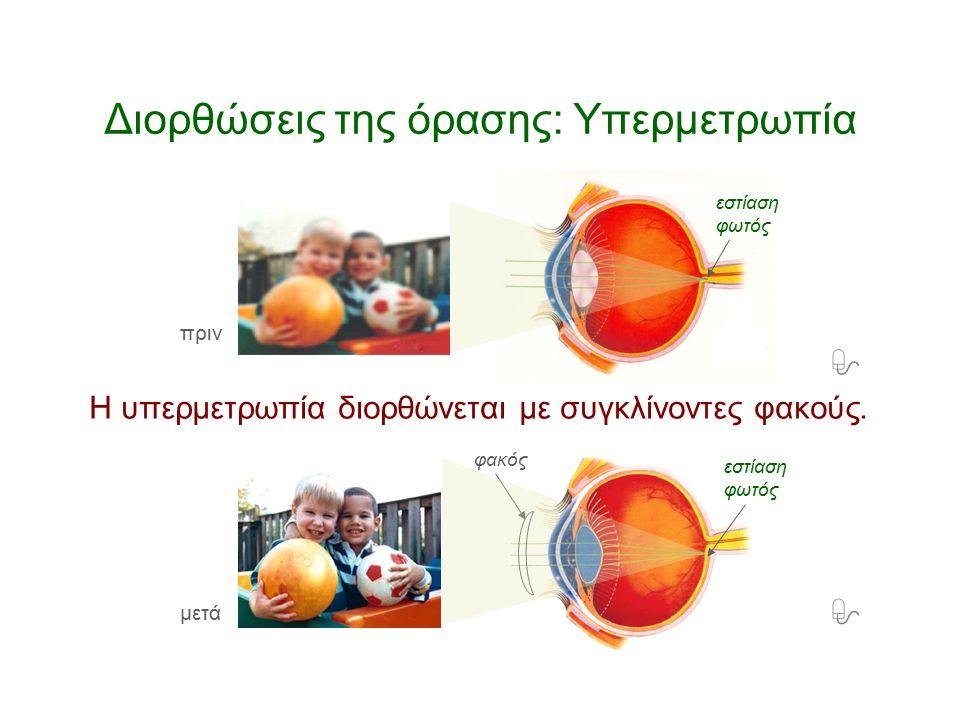 – Πώς διορθώνεται η υπερμετρωπία; Δεν φαίνονται καθαρά τα πολύ κοντινά ούτε τα πολύ μακρινά αντικείμενα. Διορθώσεις της όρασης: Υπερμετρωπία Η υπερμετ