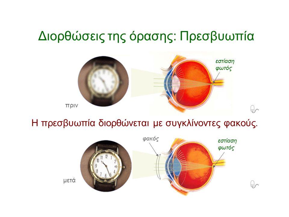 – Πώς διορθώνεται η πρεσβυωπία; Το μάτι βλέπει καθαρά μακρινά αντικείμενα αλλά όχι τα πολύ κοντινά.