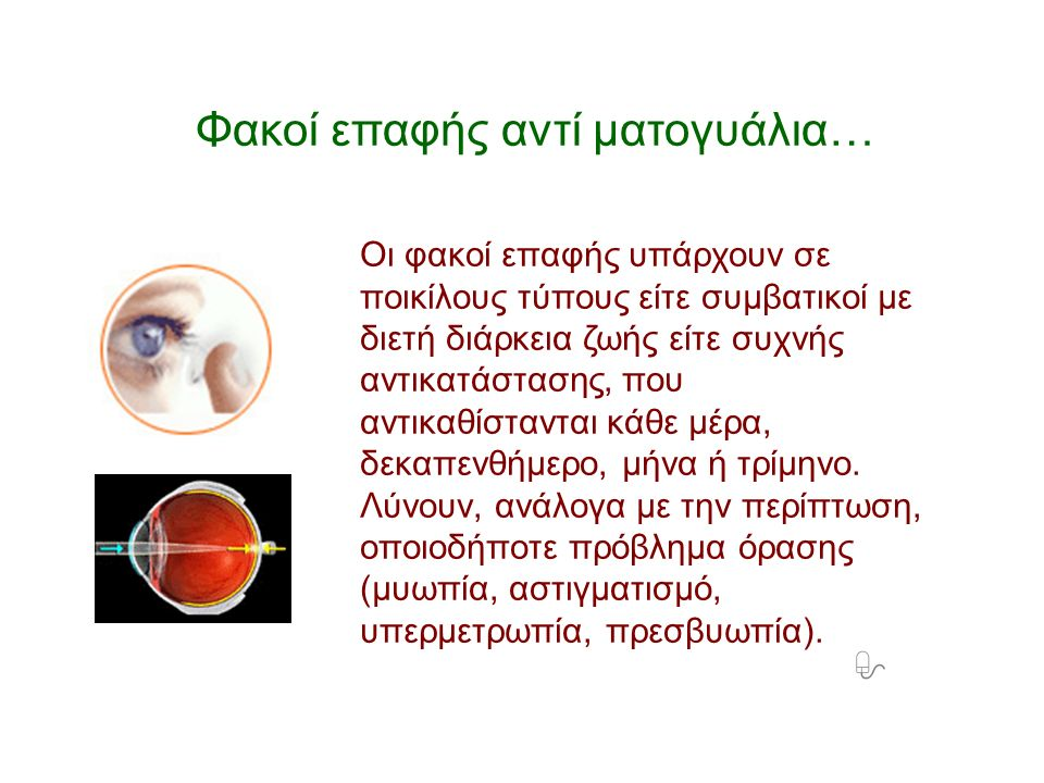Φακοί επαφής αντί ματογυάλια… Οι φακοί επαφής υπάρχουν σε ποικίλους τύπους είτε συμβατικοί με διετή διάρκεια ζωής είτε συχνής αντικατάστασης, που αντι