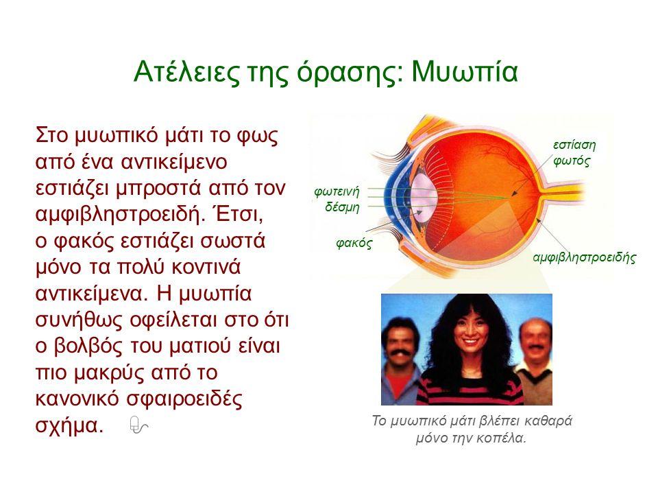 Ατέλειες της όρασης: Μυωπία Στο μυωπικό μάτι το φως από ένα αντικείμενο εστιάζει μπροστά από τον αμφιβληστροειδή. Έτσι, ο φακός εστιάζει σωστά μόνο τα