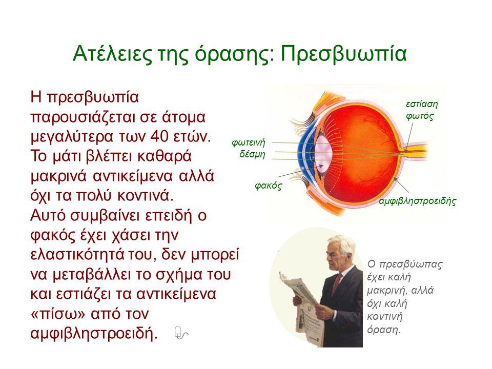 Ατέλειες της όρασης: Πρεσβυωπία Η πρεσβυωπία παρουσιάζεται σε άτομα μεγαλύτερα των 40 ετών. Το μάτι βλέπει καθαρά μακρινά αντικείμενα αλλά όχι τα πολύ