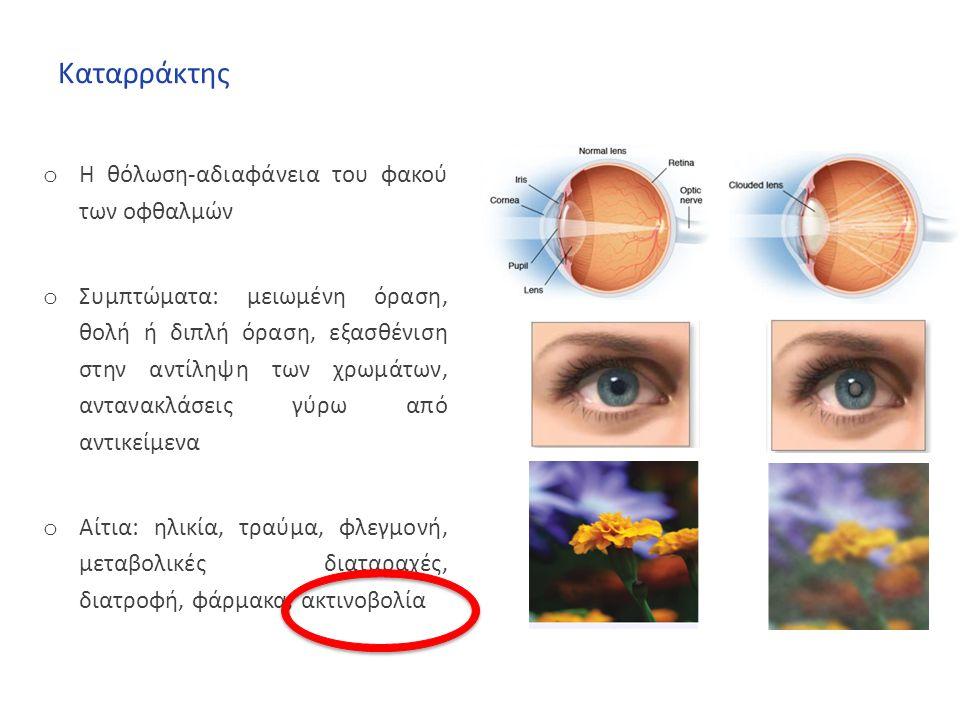 Καταρράκτης o Η θόλωση-αδιαφάνεια του φακού των οφθαλμών o Συμπτώματα: μειωμένη όραση, θολή ή διπλή όραση, εξασθένιση στην αντίληψη των χρωμάτων, αντανακλάσεις γύρω από αντικείμενα o Αίτια: ηλικία, τραύμα, φλεγμονή, μεταβολικές διαταραχές, διατροφή, φάρμακα, ακτινοβολία