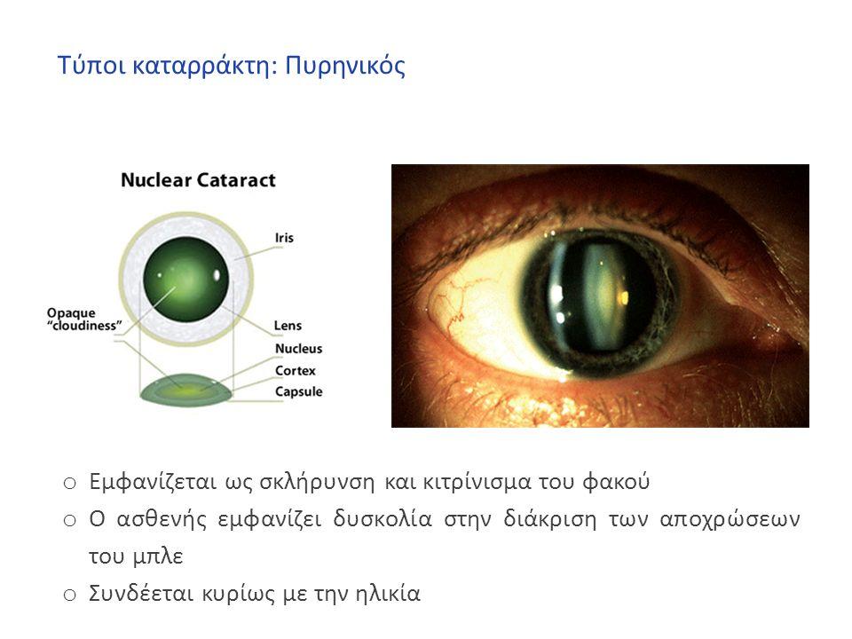 Τύποι καταρράκτη: Πυρηνικός o Εμφανίζεται ως σκλήρυνση και κιτρίνισμα του φακού o Ο ασθενής εμφανίζει δυσκολία στην διάκριση των αποχρώσεων του μπλε o Συνδέεται κυρίως με την ηλικία