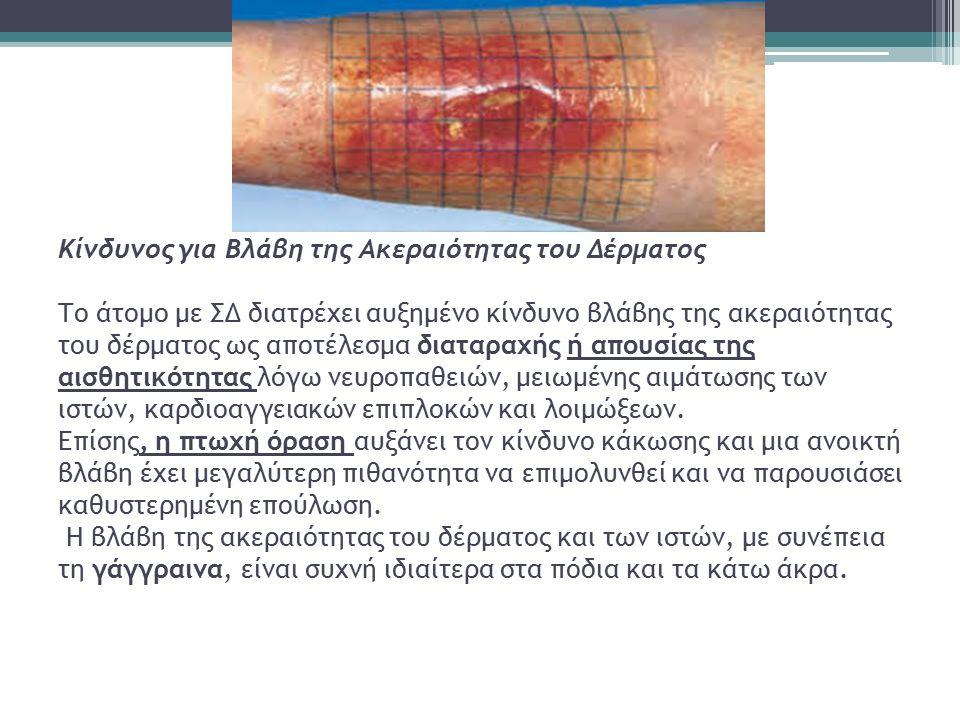 Κίνδυνος για Βλάβη της Ακεραιότητας του Δέρματος Το άτομο με ΣΔ διατρέχει αυξημένο κίνδυνο βλάβης της ακεραιότητας του δέρματος ως αποτέλεσμα διαταραχής ή απουσίας της αισθητικότητας λόγω νευροπαθειών, μειωμένης αιμάτωσης των ιστών, καρδιοαγγειακών επιπλοκών και λοιμώξεων.