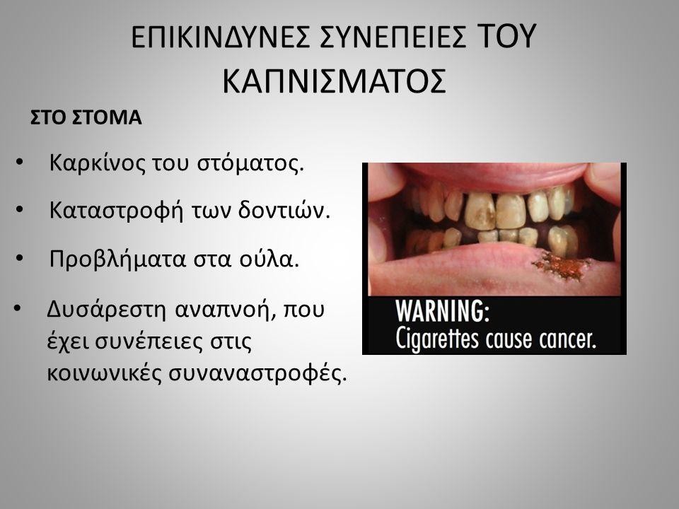 ΕΠΙΚΙΝΔΥΝΕΣ ΣΥΝΕΠΕΙΕΣ ΤΟΥ ΚΑΠΝΙΣΜΑΤΟΣ ΣΤΟ ΣΤΟΜΑ Καρκίνος του στόματος.