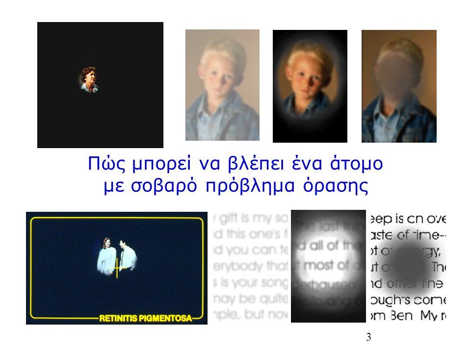 3 Πώς μπορεί να βλέπει ένα άτομο με σοβαρό πρόβλημα όρασης