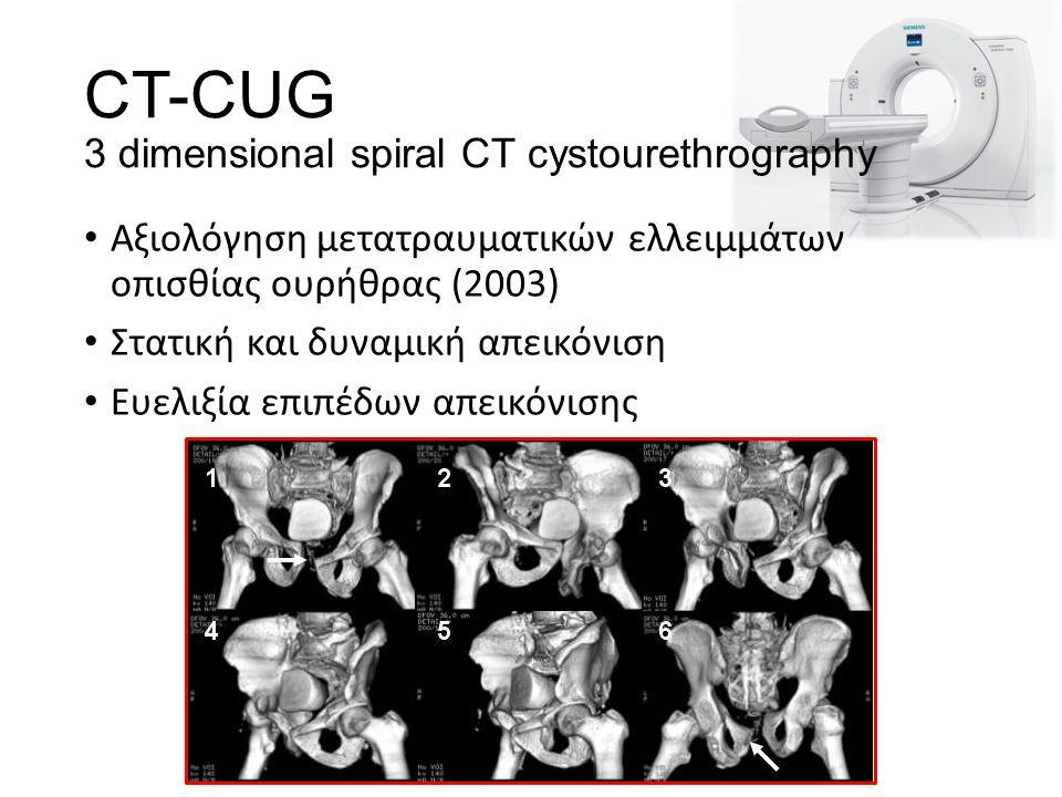 CT-CUG 3 dimensional spiral CT cystourethrography Αξιολόγηση μετατραυματικών ελλειμμάτων οπισθίας ουρήθρας (2003) Στατική και δυναμική απεικόνιση Ευελιξία επιπέδων απεικόνισης