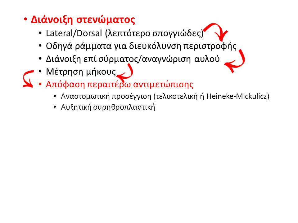 Διάνοιξη στενώματος Lateral/Dorsal (λεπτότερο σπογγιώδες) Οδηγά ράμματα για διευκόλυνση περιστροφής Διάνοιξη επί σύρματος/αναγνώριση αυλού Μέτρηση μήκους Απόφαση περαιτέρω αντιμετώπισης Αναστομωτική προσέγγιση (τελικοτελική ή Heineke-Mickulicz) Αυξητική ουρηθροπλαστική