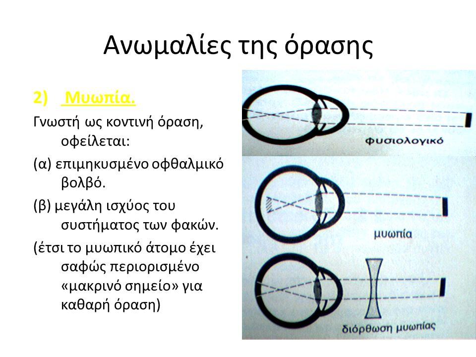 Ανωμαλίες της όρασης 2) Μυωπία.