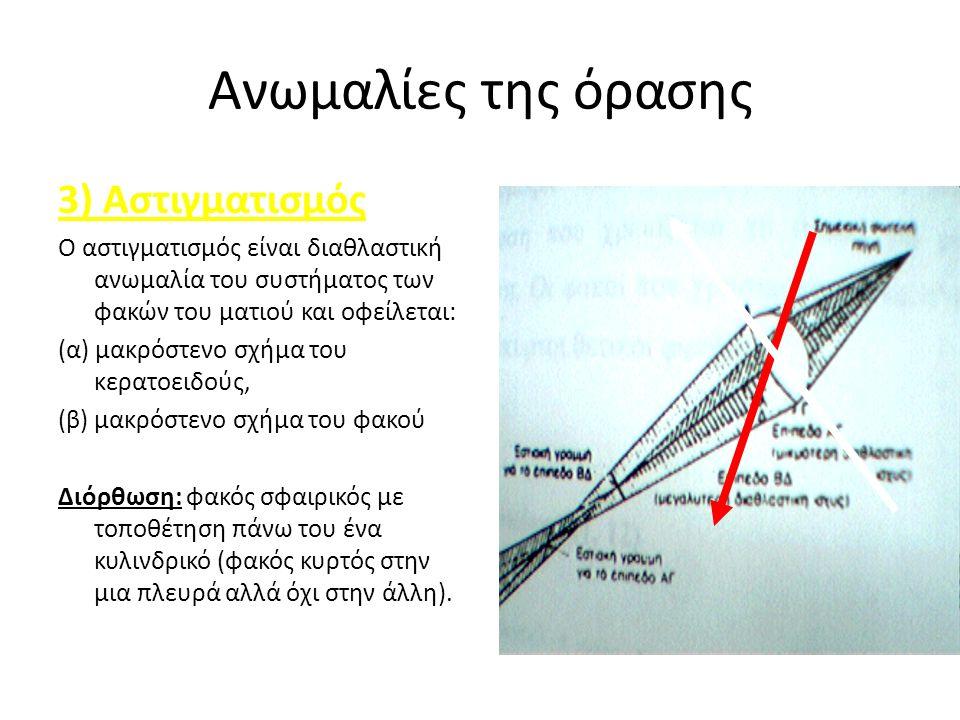 Ανωμαλίες της όρασης 3) Αστιγματισμός Ο αστιγματισμός είναι διαθλαστική ανωμαλία του συστήματος των φακών του ματιού και οφείλεται: (α) μακρόστενο σχήμα του κερατοειδούς, (β) μακρόστενο σχήμα του φακού Διόρθωση: φακός σφαιρικός με τοποθέτηση πάνω του ένα κυλινδρικό (φακός κυρτός στην μια πλευρά αλλά όχι στην άλλη).