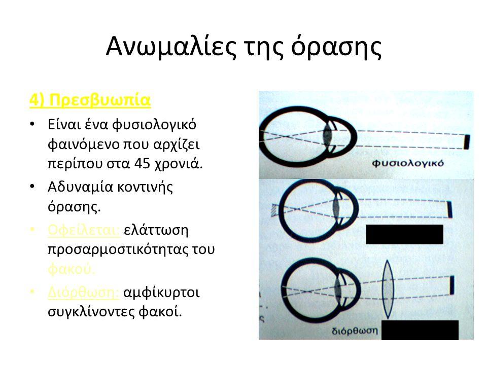 Ανωμαλίες της όρασης 4) Πρεσβυωπία Είναι ένα φυσιολογικό φαινόμενο που αρχίζει περίπου στα 45 χρονιά.