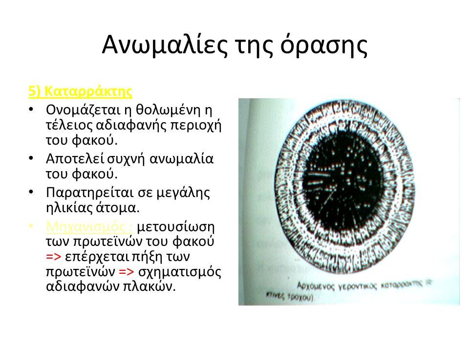 Ανωμαλίες της όρασης 5) Καταρράκτης Ονομάζεται η θολωμένη η τέλειος αδιαφανής περιοχή του φακού.