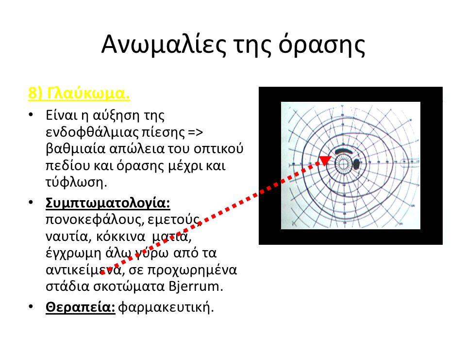 Ανωμαλίες της όρασης 8) Γλαύκωμα.