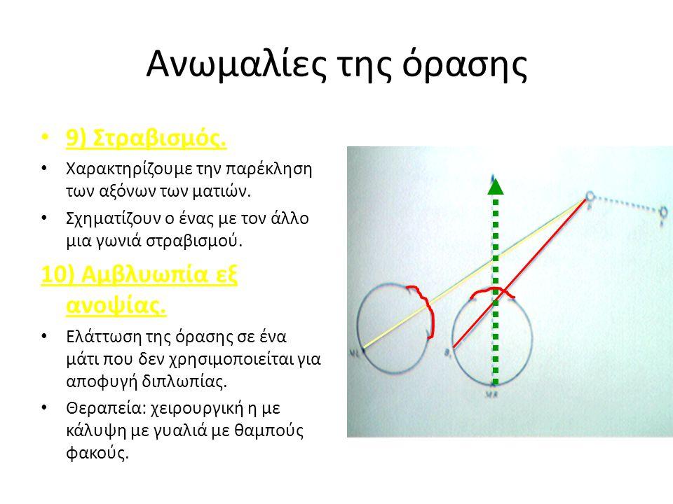 Ανωμαλίες της όρασης 9) Στραβισμός. Χαρακτηρίζουμε την παρέκληση των αξόνων των ματιών.