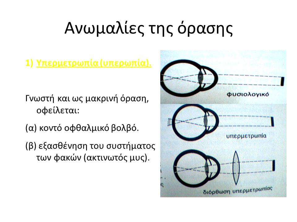 Ανωμαλίες της όρασης 1)Υπερμετρωπία (υπερωπία).