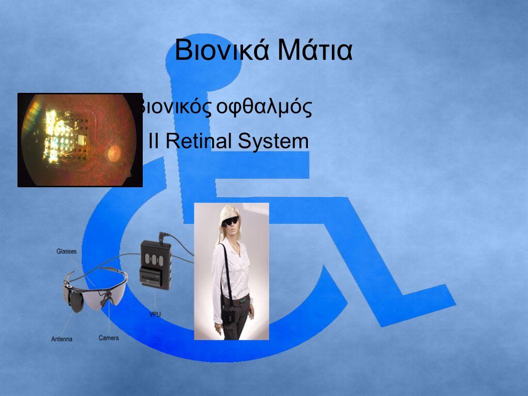 Βιονικά Μάτια Ο πρώτος βιονικός οφθαλμός το Argus II Retinal System
