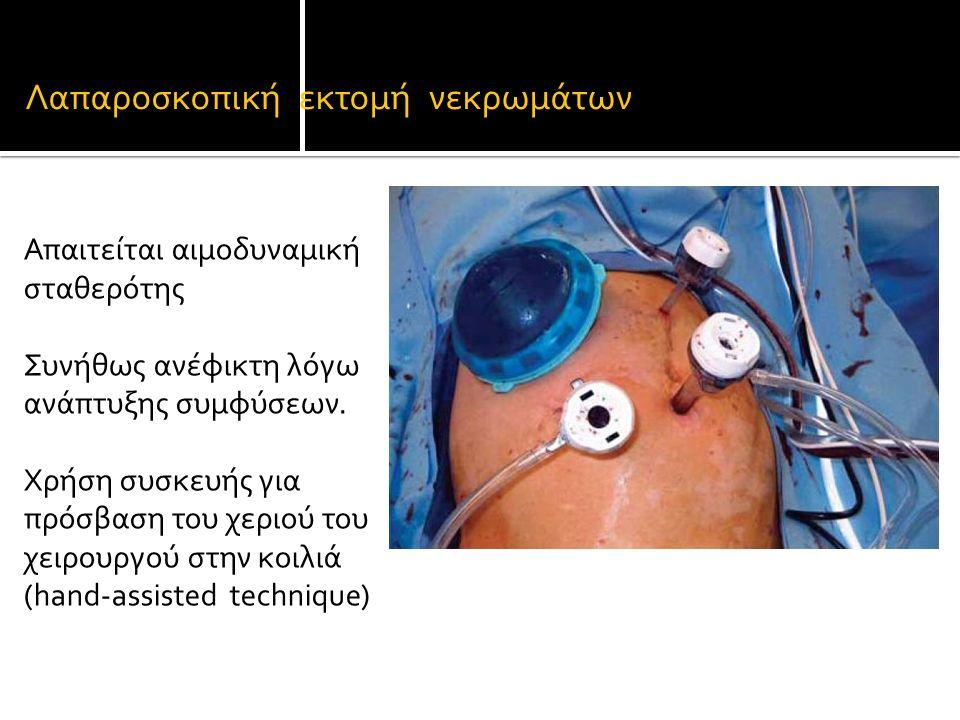 Λαπαροσκοπική εκτομή νεκρωμάτων Απαιτείται αιμοδυναμική σταθερότης Συνήθως ανέφικτη λόγω ανάπτυξης συμφύσεων.