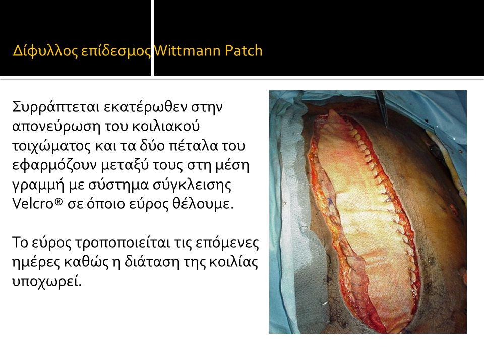 Δίφυλλος επίδεσμος Wittmann Patch Συρράπτεται εκατέρωθεν στην απονεύρωση του κοιλιακού τοιχώματος και τα δύο πέταλα του εφαρμόζουν μεταξύ τους στη μέση γραμμή με σύστημα σύγκλεισης Velcro® σε όποιο εύρος θέλουμε.