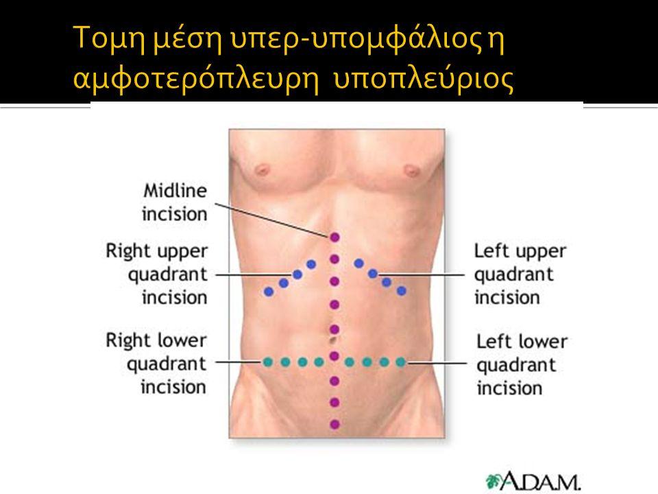  Μέση υπερυπομφάλιος τομή  Έχει προταθεί η διενέργεια της λαπαροτομίας εντός της ΜΕΘ.