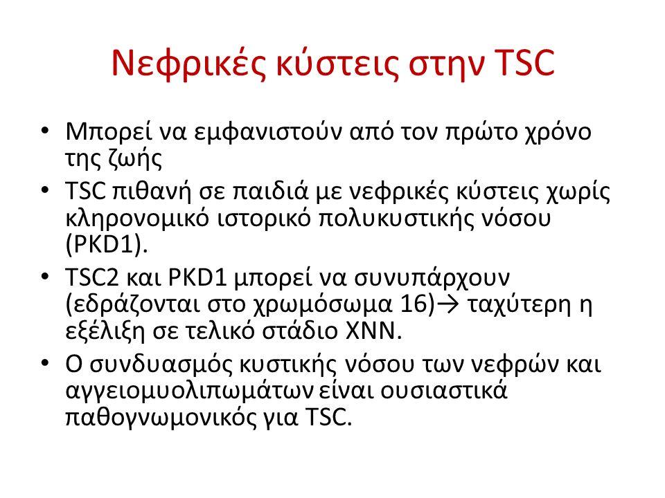 Νεφρικές κύστεις στην TSC Μπορεί να εμφανιστούν από τον πρώτο χρόνο της ζωής TSC πιθανή σε παιδιά με νεφρικές κύστεις χωρίς κληρονομικό ιστορικό πολυκ