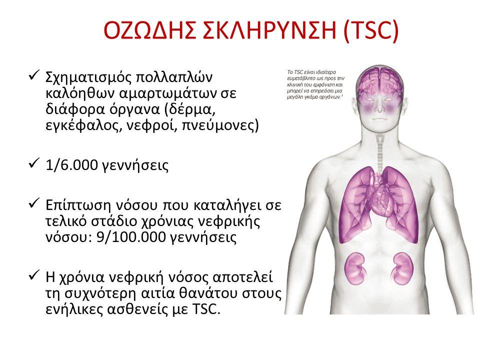 ΟΖΩΔΗΣ ΣΚΛΗΡΥΝΣΗ (TSC) ΚΛΗΡΟΝΟΜΙΚΟ ΝΟΣΗΜΑ: (αυτοσωματικό επικρατούν γονίδιο) – Οικογενής μορφή (30%) – Μη οικογενής μορφή: Αυτόματη μετάλλαξη ΓΕΝΕΤΙΚΗ: – TSC1 (χρωμόσωμα 9) – hamartin – TSC2 (χρωμόσωμα 16p) – tuberin (βαρύτερη εκδήλωση) Γονίδιο PKD1 (polycystic kidney disease 1)