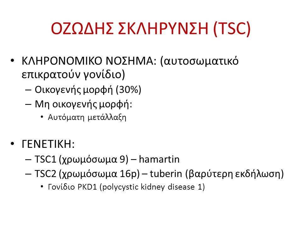 ΔΙΑΓΝΩΣΤΙΚΑ ΚΡΙΤΗΡΙΑ TSC Northrup H, Krueger DA; on behalf of the International Tuberous Sclerosis Complex Consensus Group.