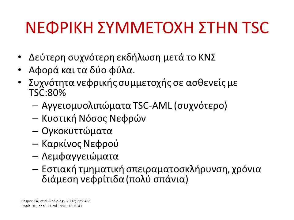 TSC - Αγγειομυολιπώματα  Καλοήθης όγκοι  Εξαιρετικά συχνά, συνήθως πολλαπλά και αμφοτερόπλευρα στην TSC.