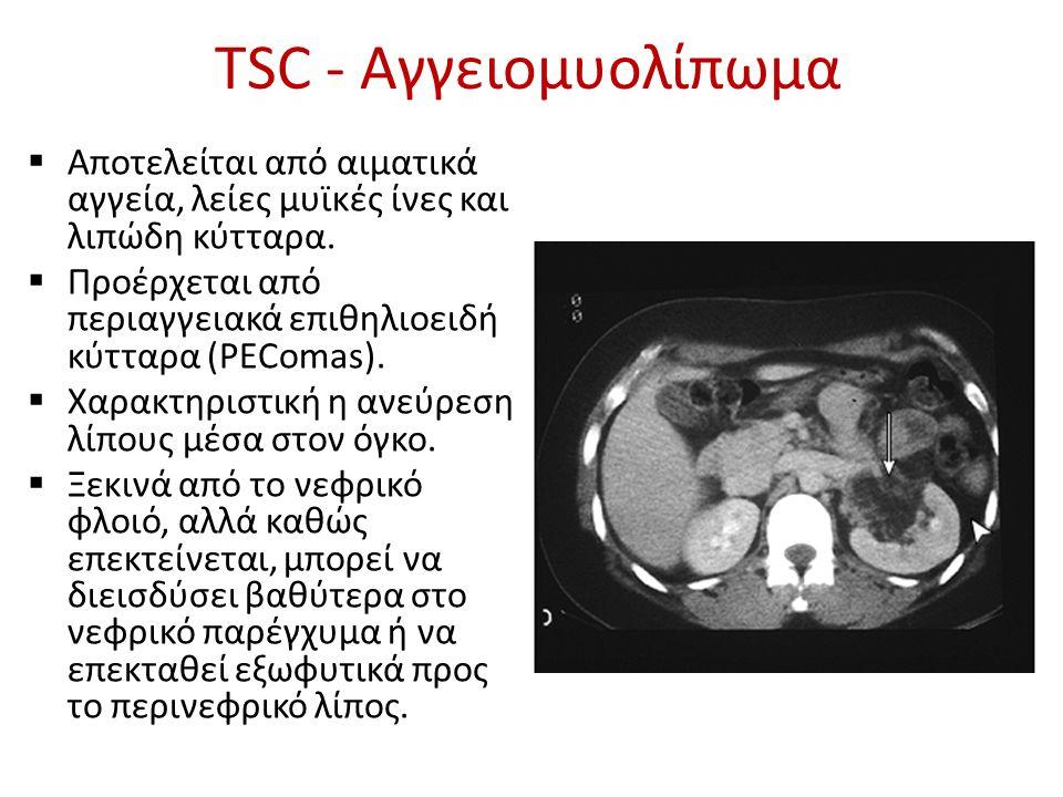 ΠΑΡΕΜΒΑΤΙΚΕΣ ΕΠΙΛΟΓΕΣ TSC – AML Εμβολισμός Τοπική εξαίρεση (προτιμότερη ακόμη και για μεγάλους όγκους) Μερική / ολική νεφρεκτομή – Επιπλοκές: Αιμορραγία Λοίμωξη Διαφυγή ούρων (μερική) Απώλεια νεφρικής μάζας «Προληπτική» παρέμβαση: δ εν συνιστάται, ~ 10% των ασθενών θα χρειαστούν θεραπεία Harabayashi T, et al.