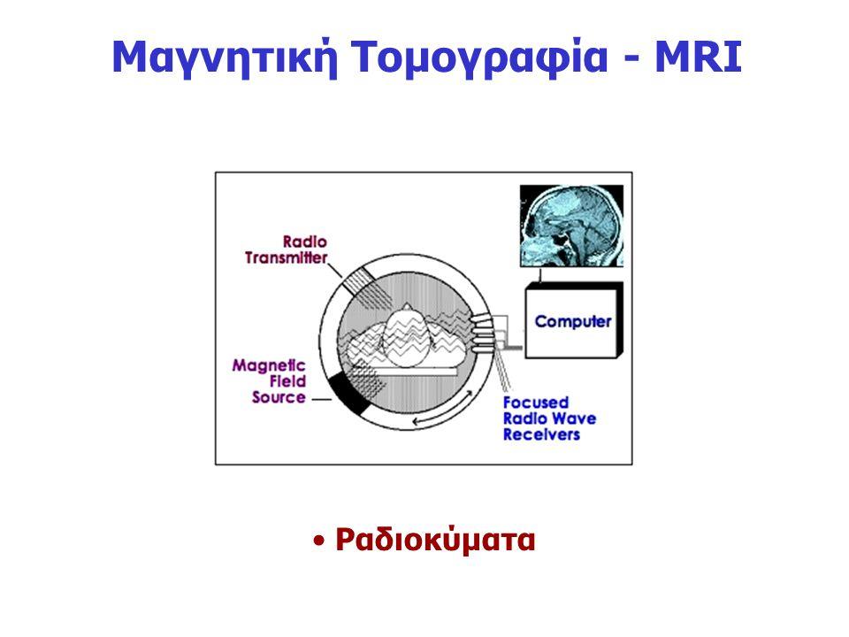 Μαγνητική Τομογραφία - MRI Ραδιοκύματα