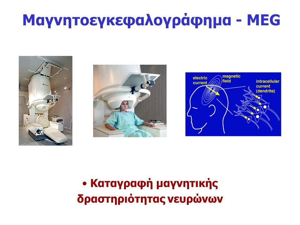 Μαγνητοεγκεφαλογράφημα - ΜEG Καταγραφή μαγνητικής δραστηριότητας νευρώνων