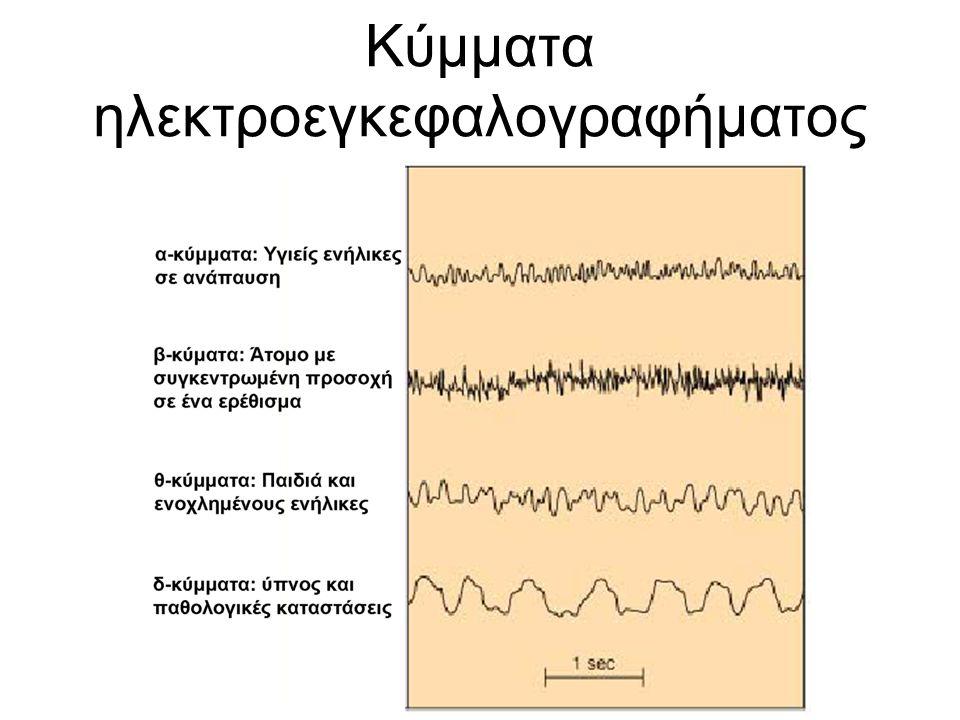 Κύμματα ηλεκτροεγκεφαλογραφήματος