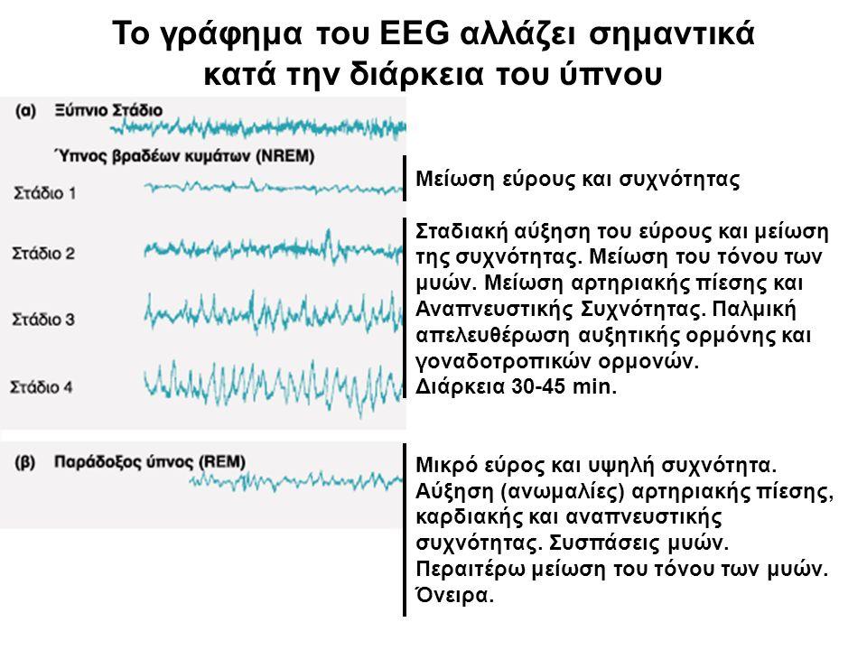 Το γράφημα του EEG αλλάζει σημαντικά κατά την διάρκεια του ύπνου Μείωση εύρους και συχνότητας Σταδιακή αύξηση του εύρους και μείωση της συχνότητας.