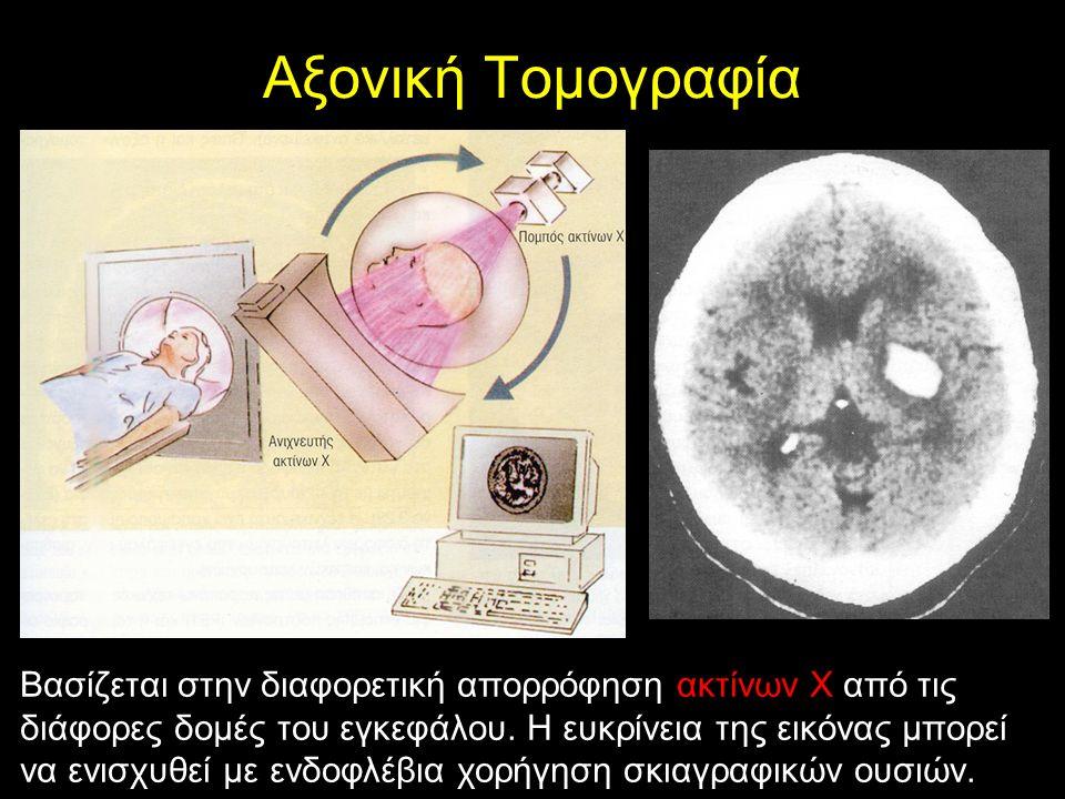 Αξονική Τομογραφία Βασίζεται στην διαφορετική απορρόφηση ακτίνων Χ από τις διάφορες δομές του εγκεφάλου.