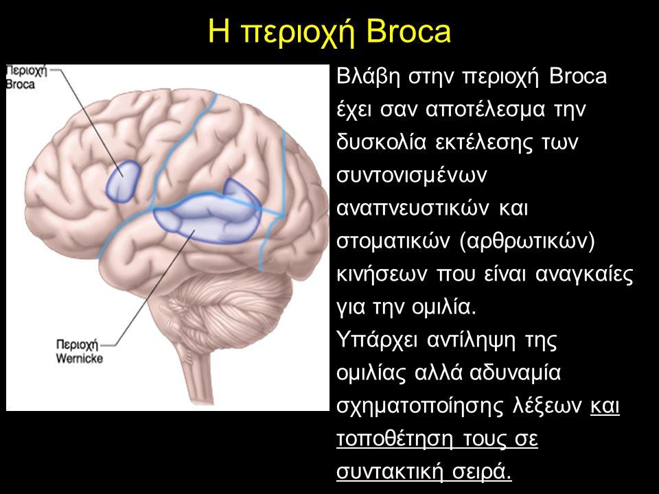 Βλάβη στην περιοχή Broca έχει σαν αποτέλεσμα την δυσκολία εκτέλεσης των συντονισμένων αναπνευστικών και στοματικών (αρθρωτικών) κινήσεων που είναι αναγκαίες για την ομιλία.