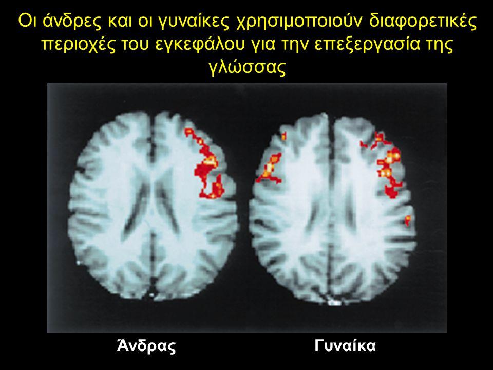 Οι άνδρες και οι γυναίκες χρησιμοποιούν διαφορετικές περιοχές του εγκεφάλου για την επεξεργασία της γλώσσας ΆνδραςΓυναίκα