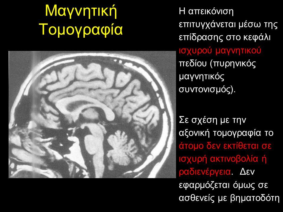 Μαγνητική Τομογραφία Η απεικόνιση επιτυγχάνεται μέσω της επίδρασης στο κεφάλι ισχυρού μαγνητικού πεδίου (πυρηνικός μαγνητικός συντονισμός).
