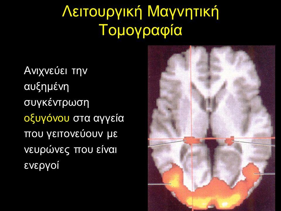 Τομογραφία Εκπομπής Ποζιτρονίων Μας πληροφορεί για την μεταβολική δραστηριότητα περιοχών του εγκεφάλου, υπολογίζοντας την κατανάλωση του οξυγόνου, την αιματική ροή ή το μεταβολισμό της γλυκόζης (ενίεται ραδιενεργή 2- δεοξυγλυκόζη που παγιδεύεται μέσα στους νευρώνες που είναι ενεργοί και εκπέμπει ποζιτρόνια)