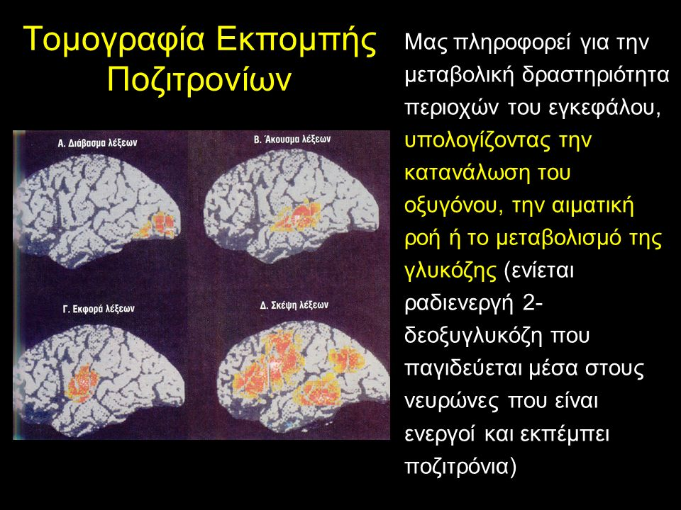 Εγκεφαλική Ασυμμετρία Την μουσική στους μουσικούς (πρωταρχικά) Γλώσσα Είναι επαγωγικό, αναλυτικό και χρονικά εξαρτώμενο.