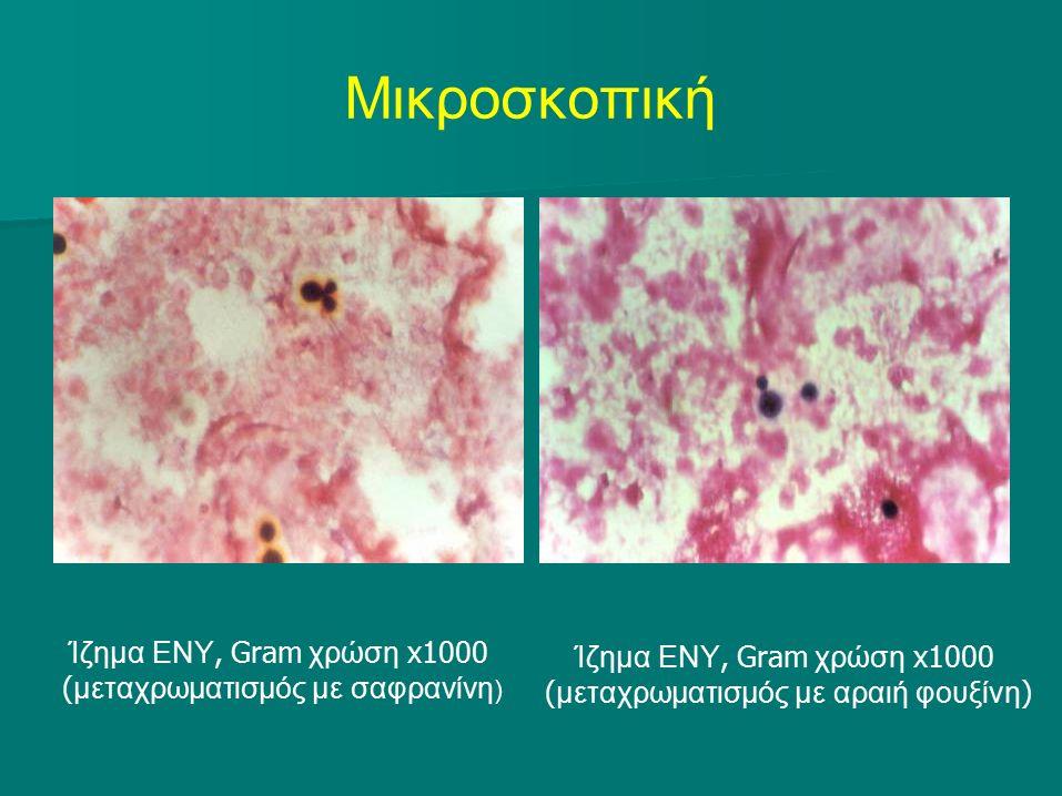 Μικροσκοπική Ίζημα ΕΝΥ, Gram χρώση x1000 ( μεταχρωματισμός με σαφρανίνη ) Ίζημα ΕΝΥ, Gram χρώση x1000 ( μεταχρωματισμός με αραιή φουξίνη )