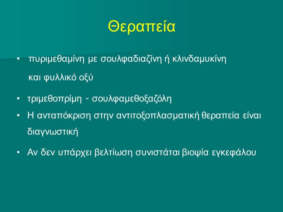 Θεραπεία πυριμεθαμίνη με σουλφαδιαζίνη ή κλινδαμυκίνη και φυλλικό οξύ τριμεθοπρίμη - σουλφαμεθοξαζόλη Η ανταπόκριση στην αντιτοξοπλασματική θεραπεία είναι διαγνωστική Αν δεν υπάρχει βελτίωση συνιστάται βιοψία εγκεφάλου