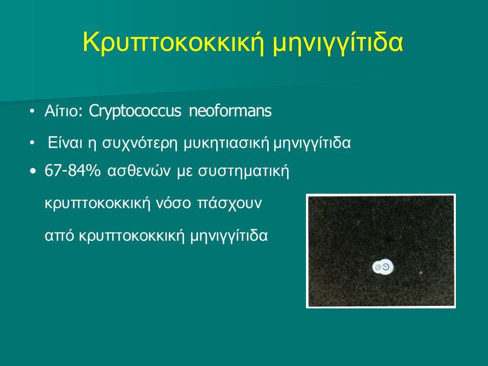 Κρυπτοκοκκική μηνιγγίτιδα Αίτιο : Cryptococcus neoformans Είναι η συχνότερη μυκητιασική μηνιγγίτιδα 67-84% ασθενών με συστηματική κρυπτοκοκκική νόσο πάσχουν από κρυπτοκοκκική μηνιγγίτιδα