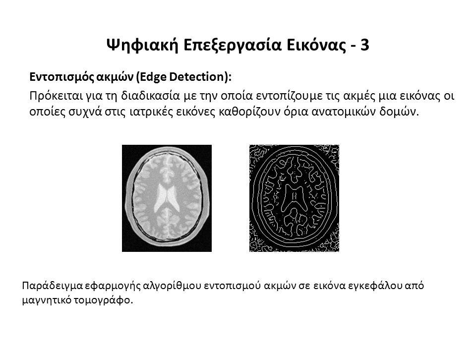 Εντοπισμός ακμών (Edge Detection): Πρόκειται για τη διαδικασία με την οποία εντοπίζουμε τις ακμές μια εικόνας οι οποίες συχνά στις ιατρικές εικόνες καθορίζουν όρια ανατομικών δομών.