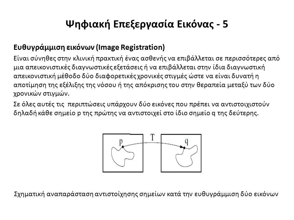 Ευθυγράμμιση εικόνων (Image Registration) Είναι σύνηθες στην κλινική πρακτική ένας ασθενής να επιβάλλεται σε περισσότερες από μια απεικονιστικές διαγνωστικές εξετάσεις ή να επιβάλλεται στην ίδια διαγνωστική απεικονιστική μέθοδο δύο διαφορετικές χρονικές στιγμές ώστε να είναι δυνατή η αποτίμηση της εξέλιξης της νόσου ή της απόκρισης του στην θεραπεία μεταξύ των δύο χρονικών στιγμών.