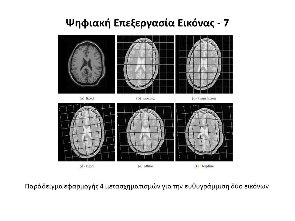 Ψηφιακή Επεξεργασία Εικόνας - 7 Παράδειγμα εφαρμογής 4 μετασχηματισμών για την ευθυγράμμιση δύο εικόνων