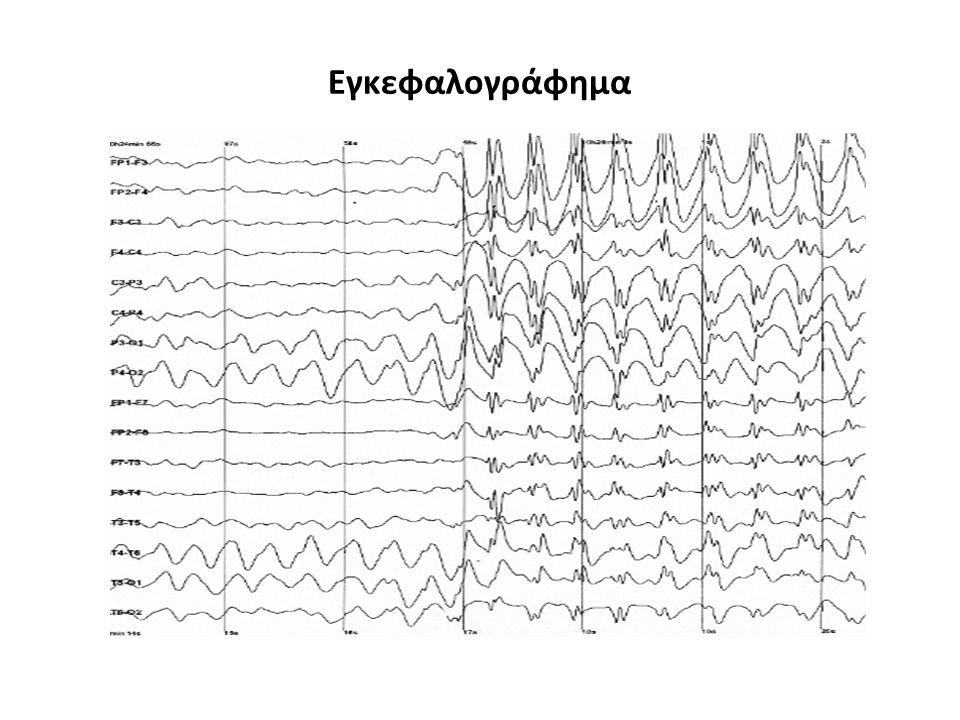 Εγκεφαλογράφημα