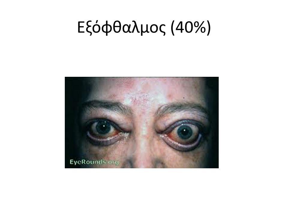 Εξόφθαλμος (40%)