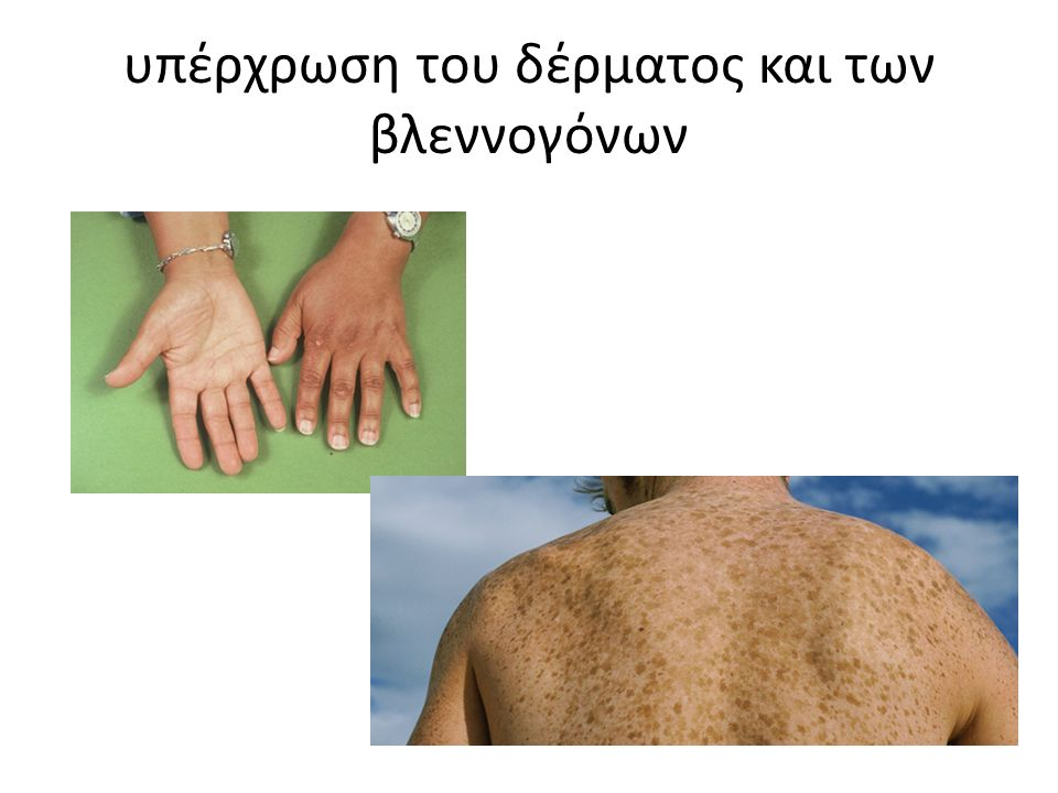 υπέρχρωση του δέρματος και των βλεννογόνων