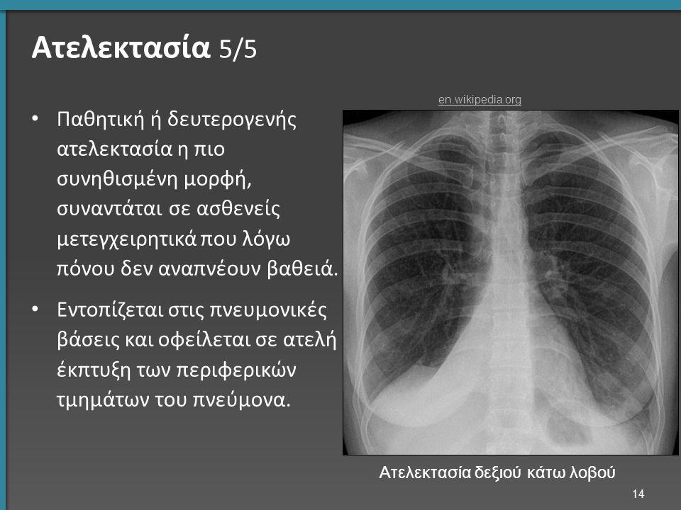 Ατελεκτασία 5/5 Παθητική ή δευτερογενής ατελεκτασία η πιο συνηθισμένη μορφή, συναντάται σε ασθενείς μετεγχειρητικά που λόγω πόνου δεν αναπνέουν βαθειά
